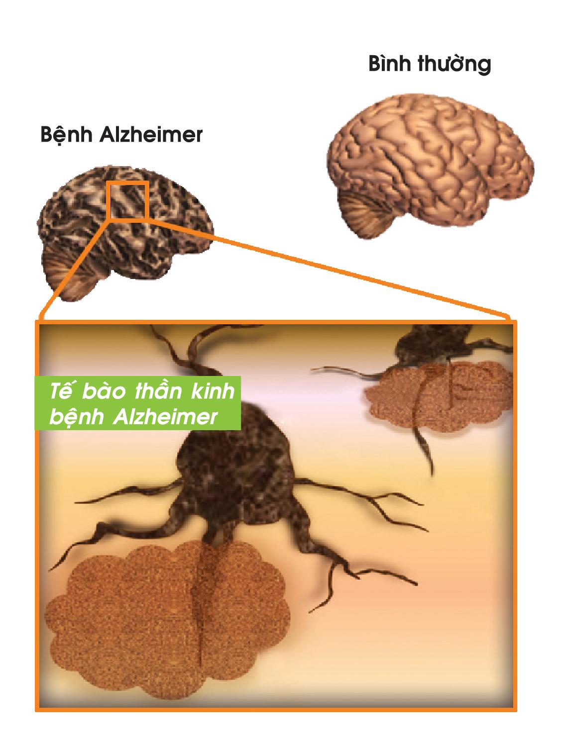 bệnh alzheimer 2