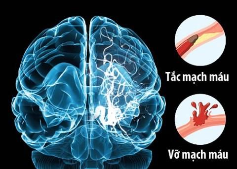 1, Nguyên nhân gây đột quỵ não 1