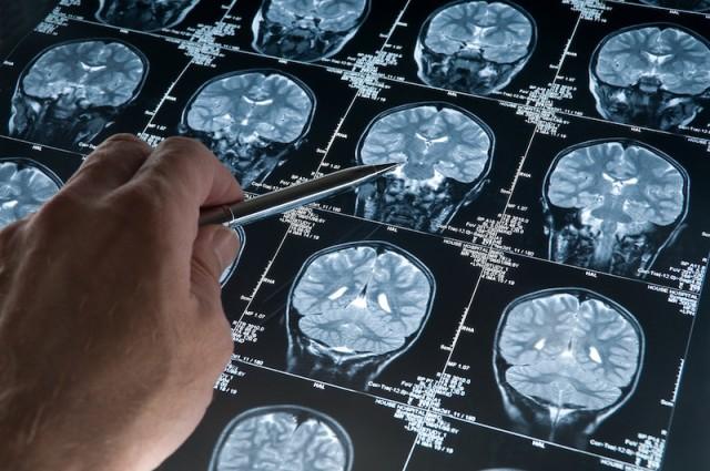 Những xét nghiệm cần thiết phát hiện bệnh teo não 1