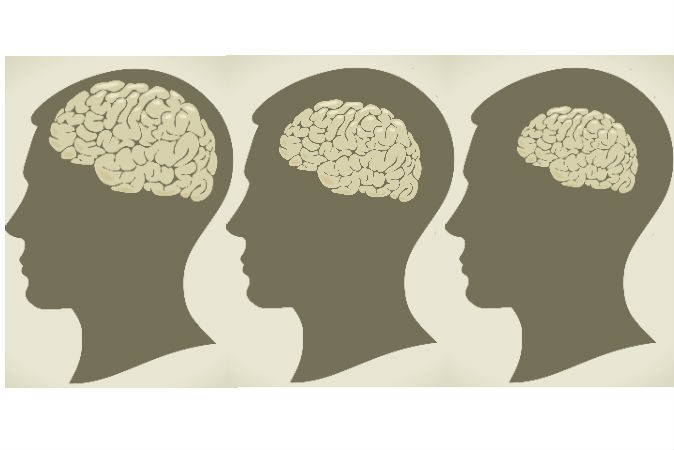 Nguyên nhân mắc bệnh teo não? 1