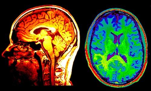 Những xét nghiệm cần thiết phát hiện bệnh đột quỵ não 1