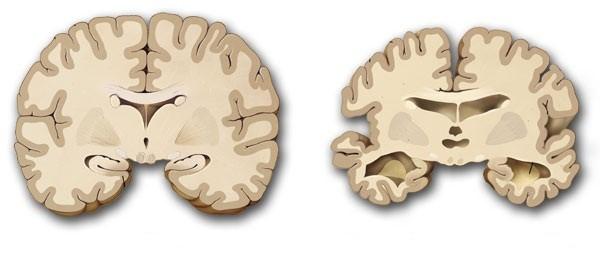 Triệu chứng và biểu hiện sớm của bệnh teo não 1