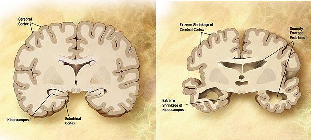 Phân biệt bệnh teo não với các bệnh lão hóa của người già 1
