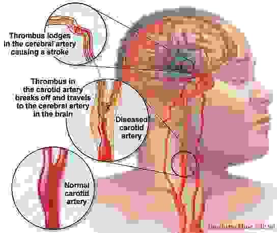 Tai biến mạch máu não có chữa được không? 1