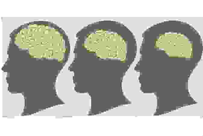 1, Bệnh teo não gây ra hậu quả gì? 1