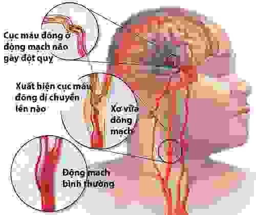 Dấu hiệu nhận biết bệnh đột quỵ não 1