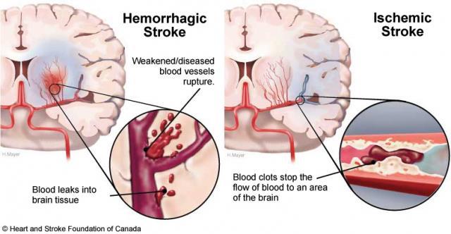 Bệnh nhồi máu não có nguy hiểm không ?