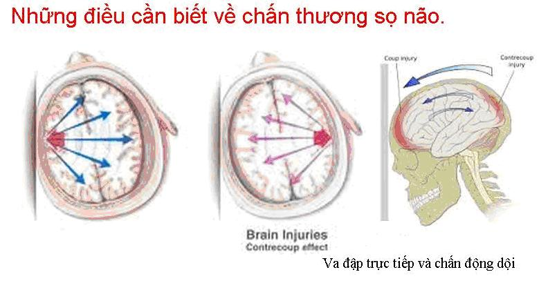 Tổng quan về chấn thương sọ não 1