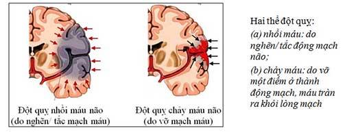 Đột quỵ não có mấy loại? 1