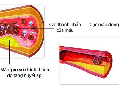 5 Nguyên nhân hàng đầu gây tai biến mạch máu não 1
