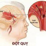 Bệnh học đột quỵ não