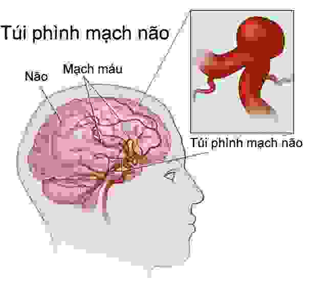 5 nguyên nhân gây vỡ mạch máu não 1