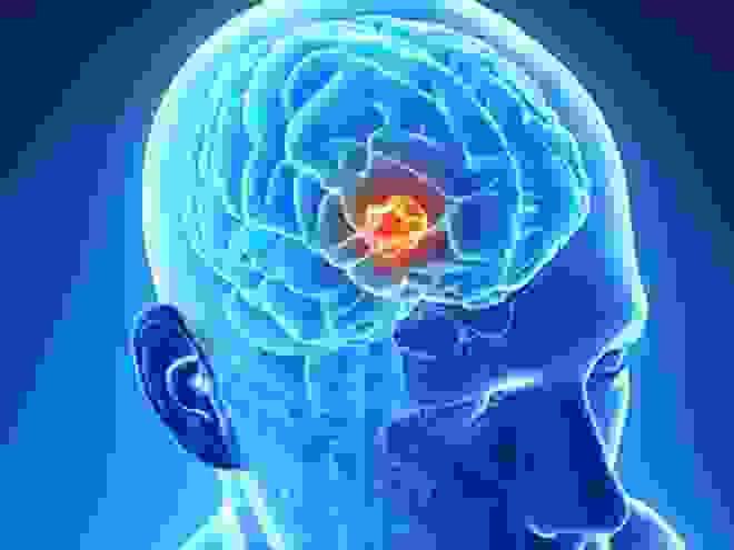 U não là gì? Cách phẫu thuật u não? 1