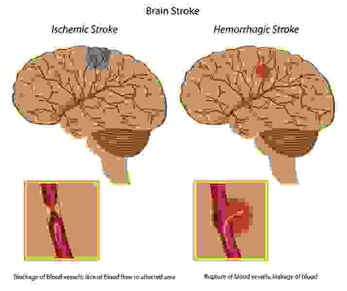 Nỗi lo vềbệnh tai biến mạch máu não 1