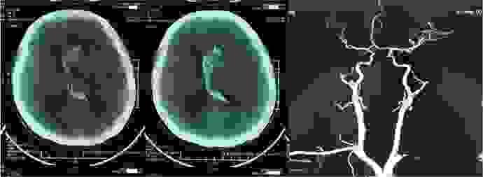 Chẩn đoán và xét nghiệm bệnh nhồi máu não khoa học 1