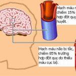 Các loại thuốc điều trị đột quỵ não