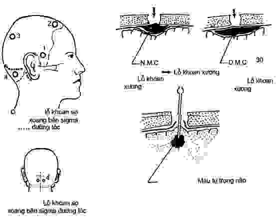 Chấn thương sọ não kín 1