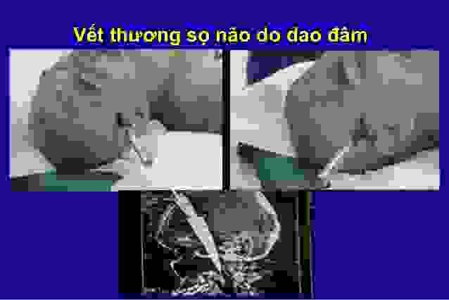 Chấn thương sọ não hở 1