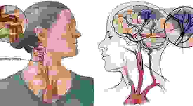 Dấu hiệu nào cảnh báo tai biến mạch máu não? 1